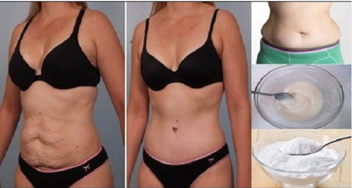Сжечь подкожный жир для женщин